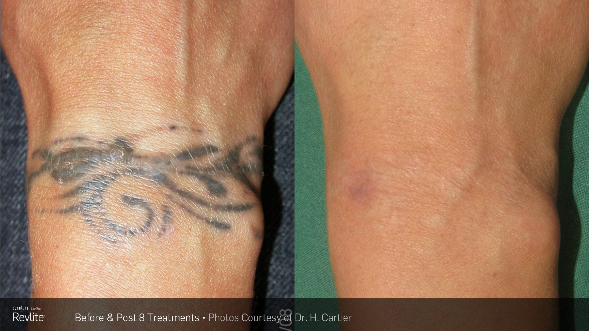 BA-Revlite-Tattoo-H-Cartier-Post8Tx