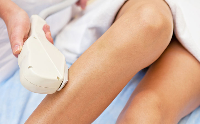 sass-laser-hair-removal